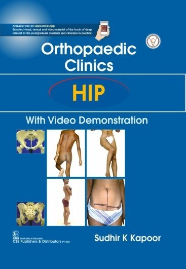Orthopedic Clinics Hip With Video Demonstration