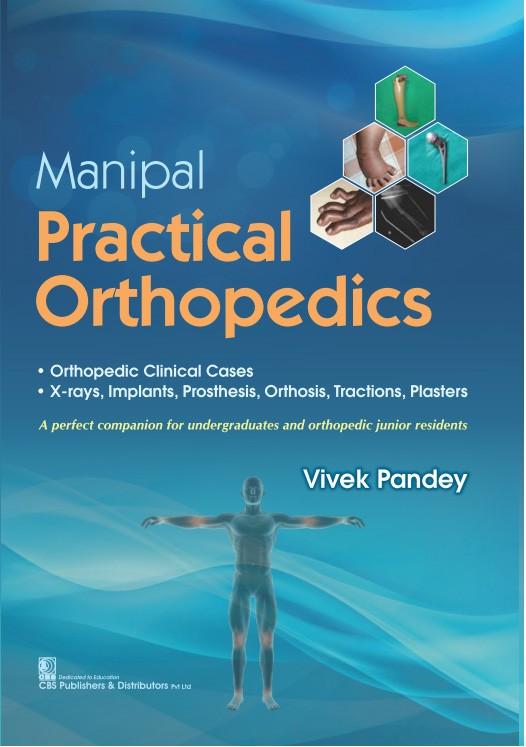 Manipal Practical Orthopedics-9789390046157-Vivek Pandey