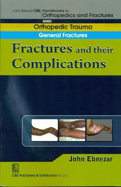 Fractures And Their Complications (Handbook In Orthopedics And Fractures Vol.3 - Orthopedic Trauma General Fractures)