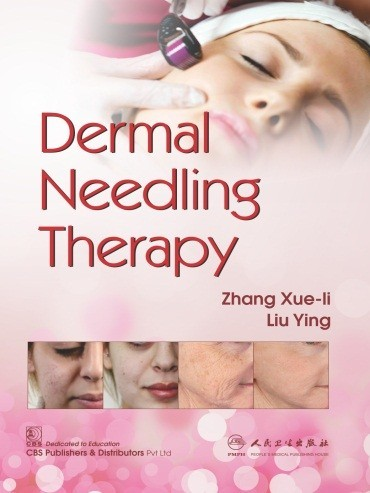 Dermal Needling Therapy (CBS reprint)