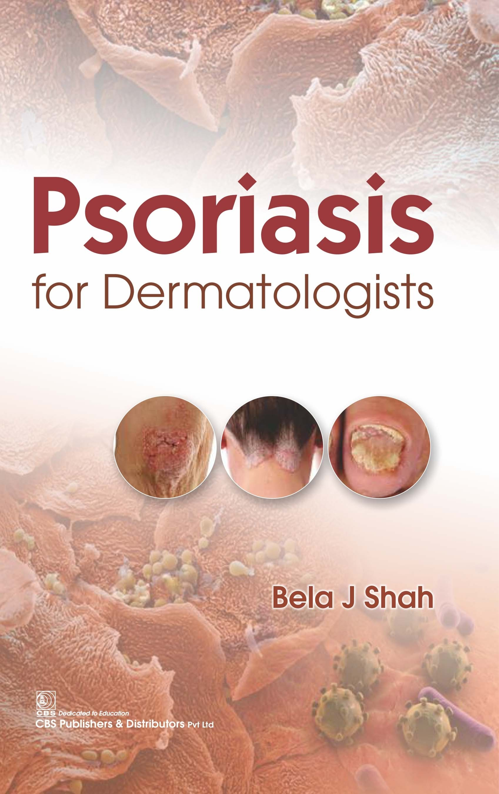 Psoriasis for Dermatologists