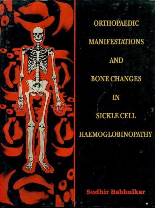 Orthopaedic Manifestations & Bone Changes In Sickle Cell Haemoglobinopathy