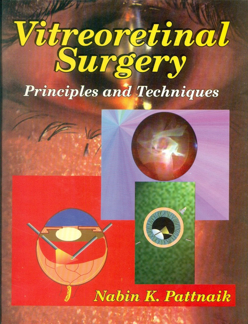 Vitreoretinal Surgery: Principles And Techniques