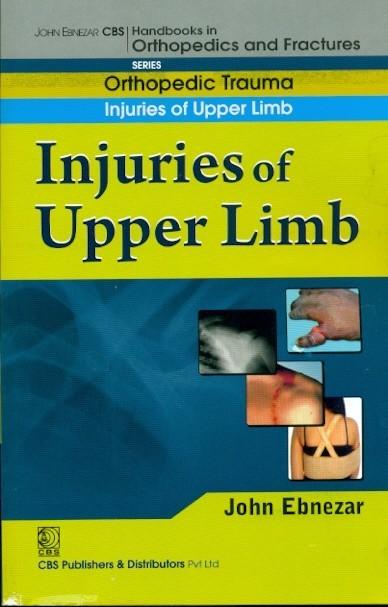 Injuries Of Upper Limb  ((Handbook In Orthopedics And Fractures Vol.12 - Orthopedic Trauma Injuries Of Upper Limb)