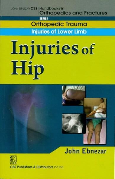 Injuries Of Hip (Handbook Of Orthopedics And Fratures Series, Vol. 13: Orthopedic Trauma Injuries Of Lower Limb)
