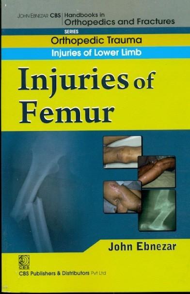 In Juries Of Femur (Handbook In Orthopedics And Fractures Vol.14 - Orthopedic Trauma Injuries Of Lower Limb)