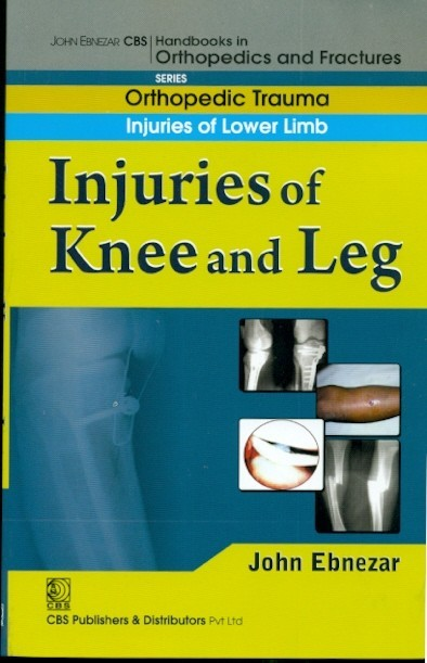 Injuries Of Knee And Leg ( Handbook In Orthopedics And Fractures Series Vol.16- Orthopedic Trauma Injuries Of Lower Limb)