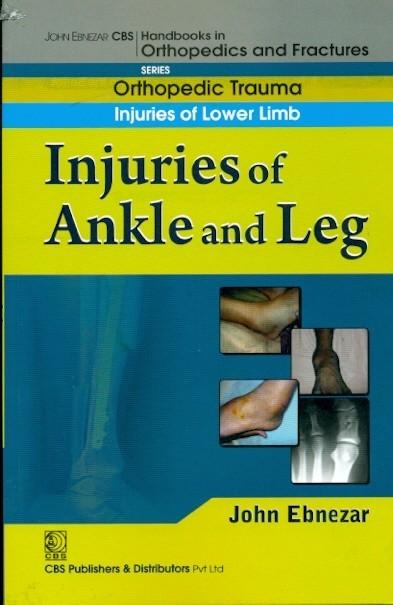 Injuries Of Ankle And Leg (Handbook Of Orthopedics And Fratures Series, Vol. 17: Orthopedic Trauma  Injuries Of Lower Limb)