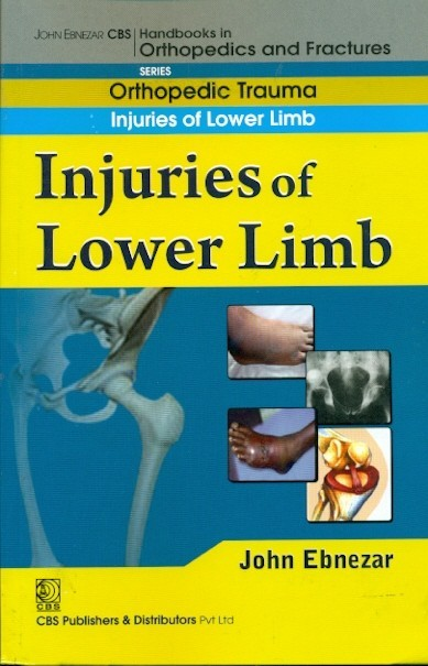 Injuries Of Lower Limb (Handbook In Orthopedics And Fractures Vol.19 - Orthopedic Trauma Injuries Of Lower Limb)