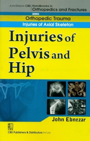 Injuries Of Pelvis And Hip (Handbook In Orthopedics And Fractures Vol.20 - Orthopedic Trauma Injuries Of Axial Skeleton)
