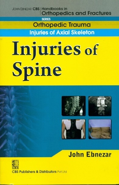 Injuries Of Spine (Handbook Of Orthopedics And Fractures Series, Vol. 21: Orthopedic Trauma Injuries Of Axial Skeleton )