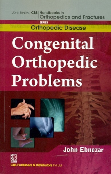 Congenital Orthopedic Problems (Handbooks In Orthopedics And Fractures Series, Vol.28: Orthopedic Disease)A)