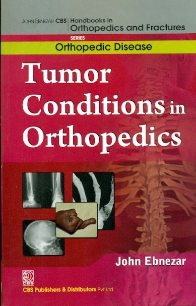 Tumor Conditions In Orthopedics  (Handbooks In Orthopedics And Fractures Series, Vol. 36: Orthopedic Disease)