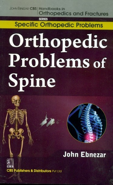 Orthopedic Problems Of Spine (Handbooks In Orthopedics And Fractures Series, Vol.38-Specific Orthopedic Problems)