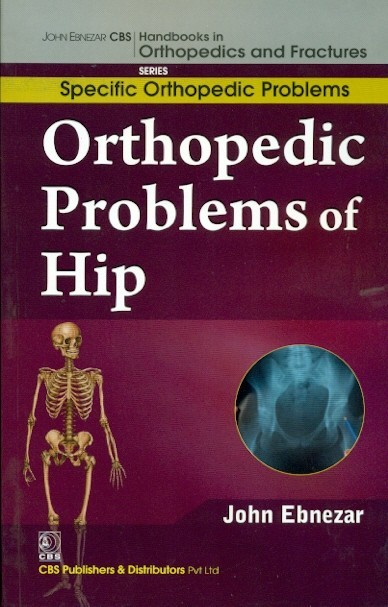 Orthopedic Problems Of Hip (Handbooks In Orthopedics And Fractures Series, Vol. 40: Specific Orthopedic Problems)