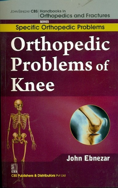 Orthopedic Problems Of Knee (Handbooks In Orthopedics And Fractures Series, Vol. 41: Specific Orthopedic Problems)