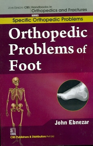 Orthopedic Problems Of Foot (Handbooks In Orthopedics And Fractures Series, Vol. 42: Specific Orthopedic Problems )
