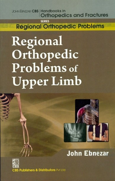 Regional Orthopedic Problems Of Upper Limb (Handbooks In Orthopedics And Fractures Series, Vol.48: Regional Orthopedic Problems)