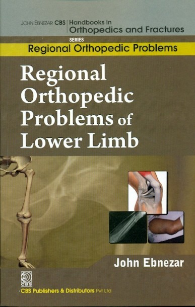 Regional Orthopedic Problems Of Lower Limb (Handbooks In Orthopedics And Fractures Series, Vol. 49: Regional Orthopedic Problems)