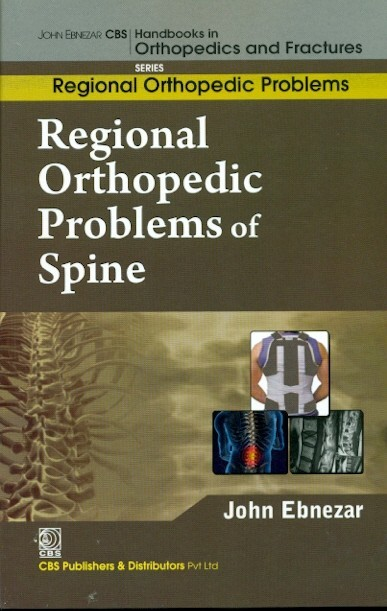 Regional Orthopedic Problems Of Spine (Handbooks In Orthopedics And Fractures Series, Vol. 50: Regional Orthopedic Problems)