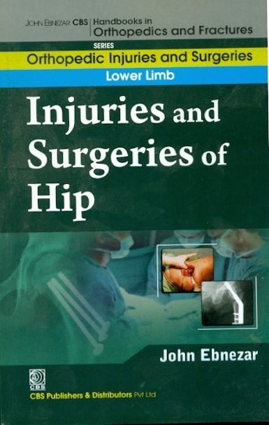 Injuries And Surgeries Of Hip (Handbooks In Orthopedics And Fractures Series, Vol. 55: Orthopedic Injuries And Surgeries Lower Limb)