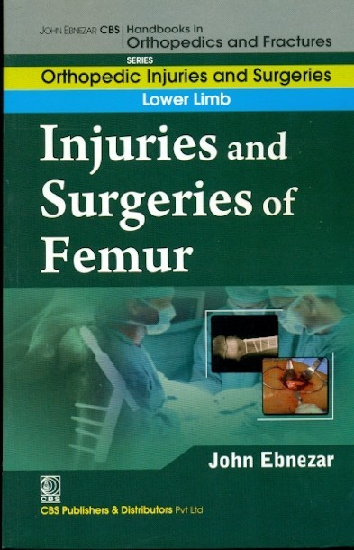 Injuries And Surgeries Of Femur (Handbooks In Orthopedics And Fractures Series, Vol. 56: Lower Limb)