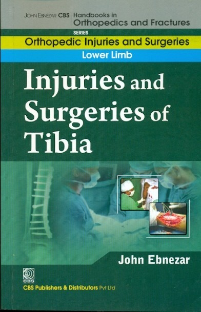 Injuries And Surgeries Of Tibia (Handbooks In Orthopedics And Fractures Series, Vol. 57: Orthopedic Injuries And Surgeries Lower Limb)