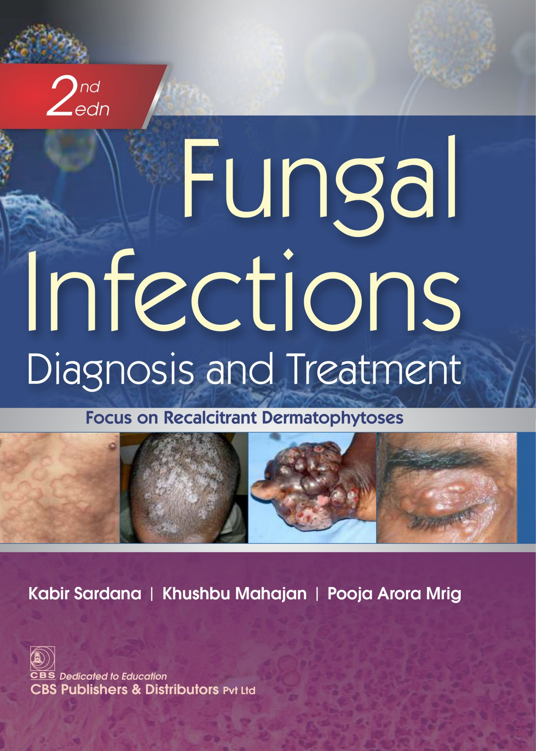 FUNGAL INFECTIONS DIAGNOSIS AND TREATMENT 2ED (HB 2021)