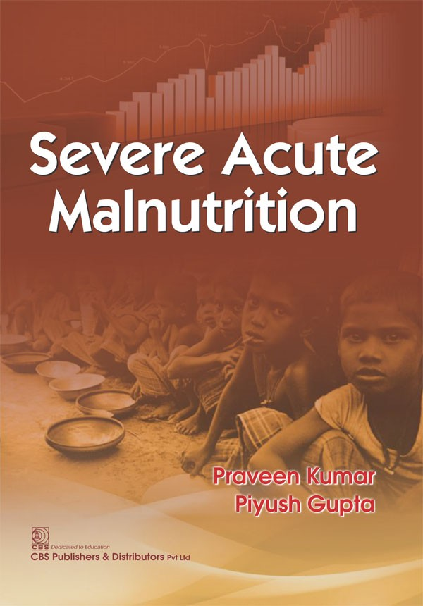 Severe Acute Malnutrition