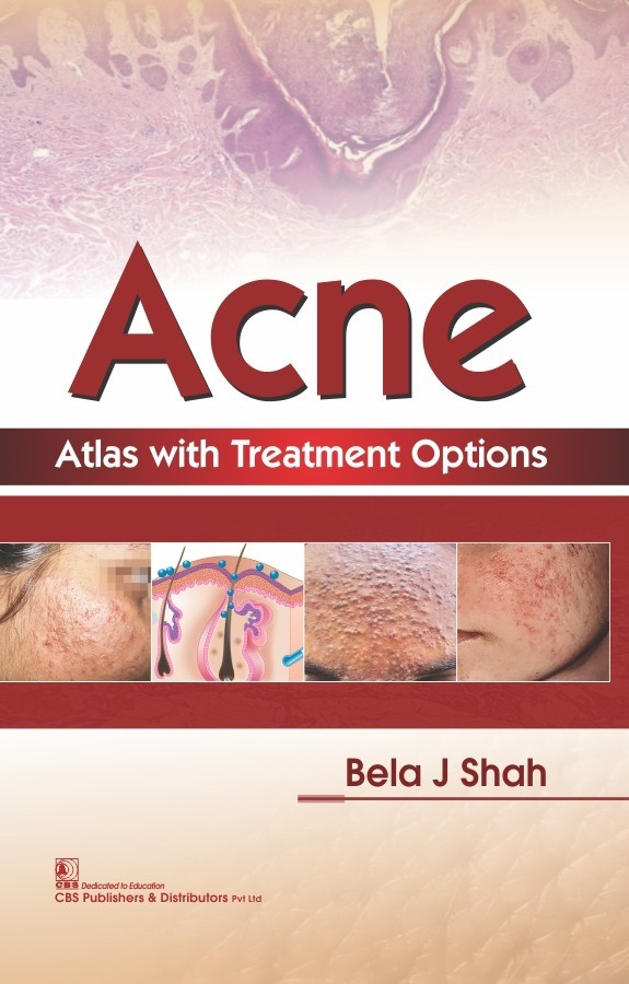Acne Atlas with Treatment Options Atlas with Treatment Options