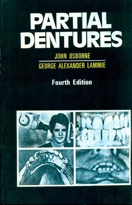 Partial Dentures, 4E