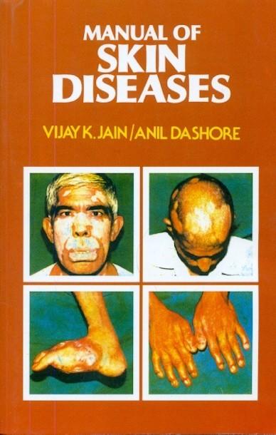 Manual Of Skin Diseases (Pb-2013)