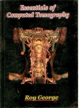 Essentials Of Computed Tomography