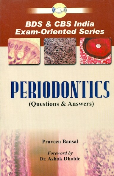 Periodontics  (Questions & Answers)