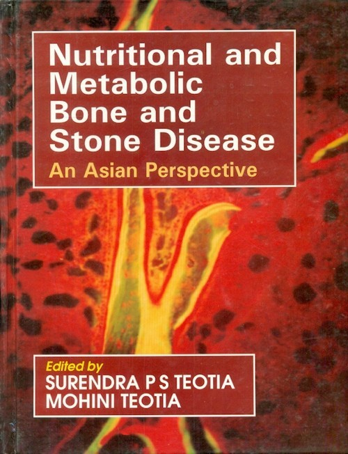 Nutritional And Metabolic Bone And Stone Disease: An Asian Perspective