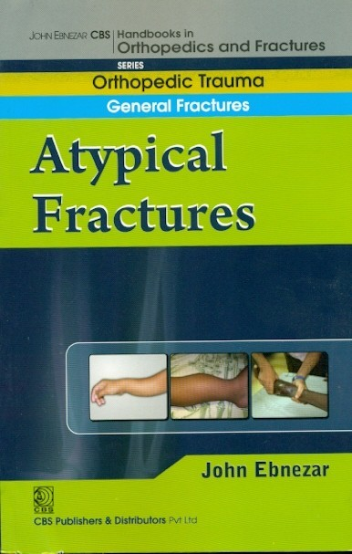 A Typical Fractures (Handbook In Orthopedics And Fractures Vol.4 - Orthopedic Trauma General Fractures)
