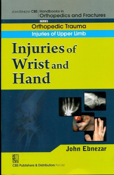 Injuries Of Wrist And Hand (Handbook In Orthopedics And Fractures Vol.9 - Orthopedic Trauma Injuries Of Upper Limb)