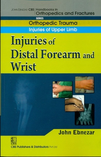 Injuries Of Distal Forearm And Wrist (Handbook In Orthopedics And Fractures Series, Vol.10 - Orthopedic Trauma Injuries Of Upper Limb)