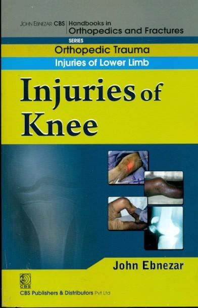 Injuries Of Knee (Handbook Of Orthopedics And Fractures Series, Vol. 15: Orthopedic Trauma Injuaries Of Lower Limb)
