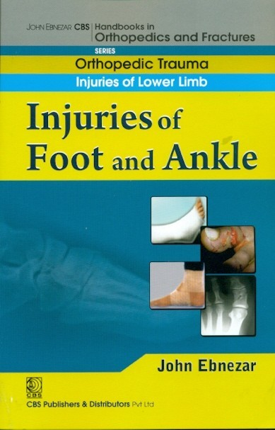 Injuries Of Foot And Ankle (Handbook In Orthopedics And Fractures Series, Vol. 18 - Orthopedic Trauma Injuries Of Lower Limb)