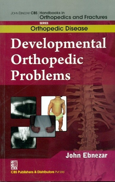 Developmental Orthopedic Problems (Handbooks In Orthopedics And Fractures Series, Vol. 29: Orthopedic Disease)