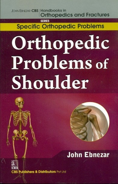 Orthopedic Problems Of Shoulder  (Handbooks In Orthopedics And Fractures Series, Vol.43: Specific Orthpedic Problems)
