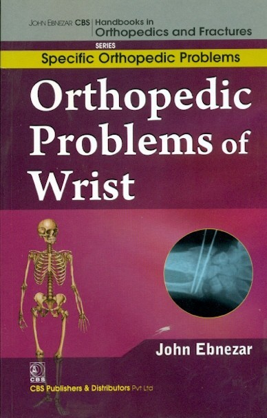 Orthopedic Problems Of Wrist (Handbooks In Orthopedics And Fractures Series, Vol 46: Specific Orthopedic Problems)