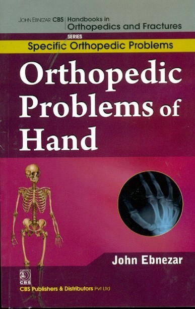 Orthopedic Problems Of Hand (Handbooks In Orthopedics And Fractures Series, Vol.47: Specific Orthopedic Problems)