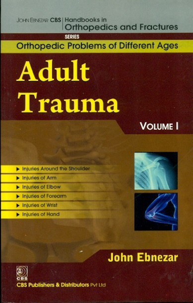 Adult Trauma Vol. 1  (Handbooks In Orthopedics And Fractures Series, Vol. 75 Orthopedic Problems Of Different Ages)