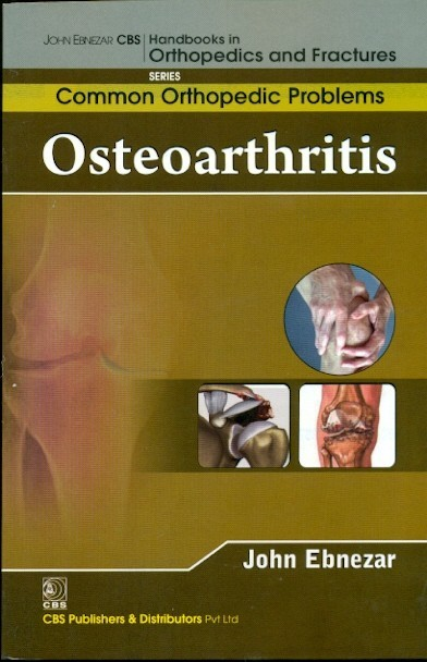 Osteoarthritis  (Handbooks In Orthopedics And Fractures Series, Vol. 87 -Common Orthopedic Problems)