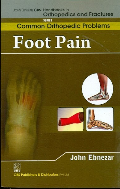 Foot Pain (Handbooks In Orthopedics And Fractures Series, Vol. 91- Common Orthopedic Problems)
