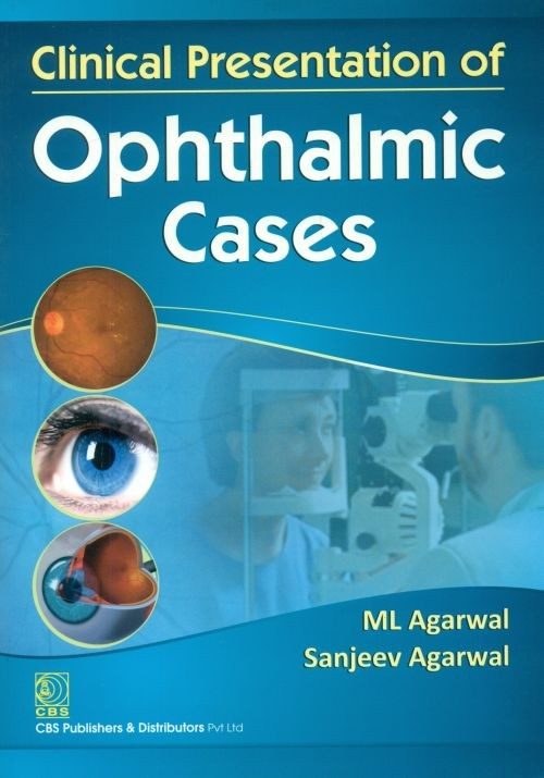 Clinical Presentation Of Opthalmic Cases (Pb2014)