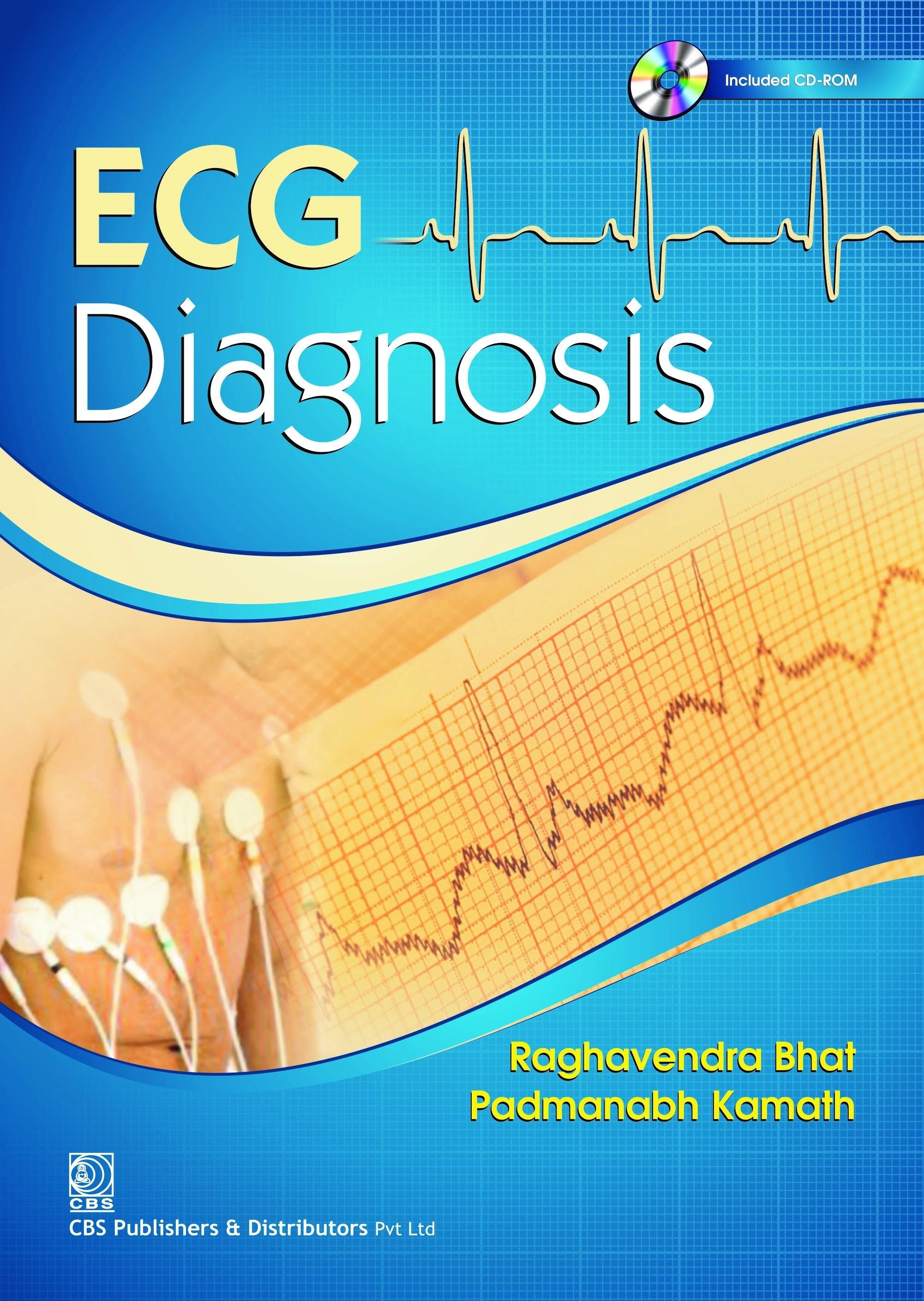 ECG Diagnosis