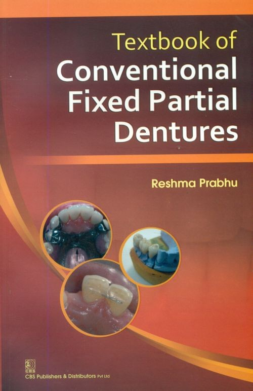 Textbook Of Conventional Fixed Partial Dentures (Pb-2014)
